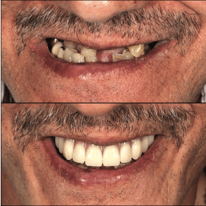 зубы за один день all on 4 до после